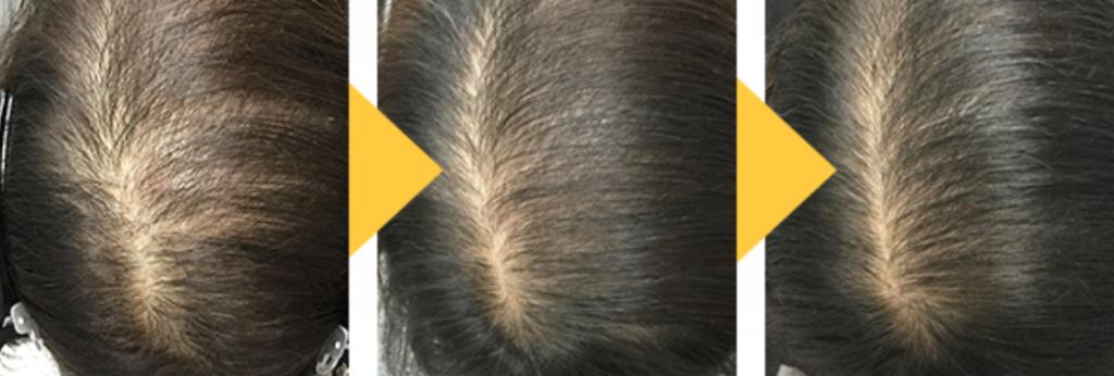 女性薄毛治療効果